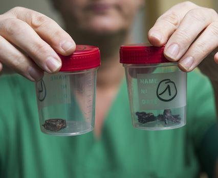 A szögbomba maradványok roncsolják a szöveteket, de kioperálni sem könnyű őket./Fotó:AFP